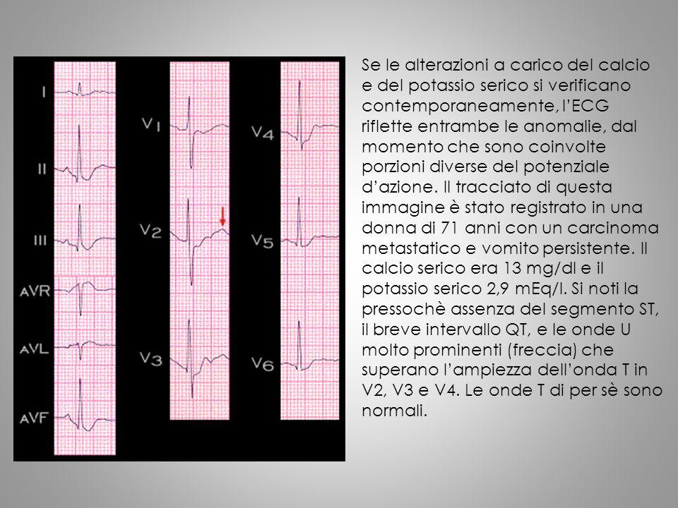 Se le alterazioni a carico del calcio e del potassio serico si verificano contemporaneamente, l'ECG riflette entrambe le anomalie, dal momento che sono coinvolte porzioni diverse del potenziale d'azione.