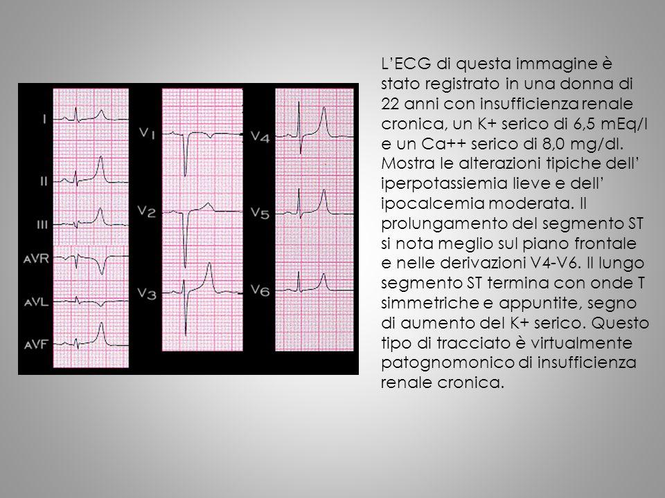 L'ECG di questa immagine è stato registrato in una donna di 22 anni con insufficienza renale cronica, un K+ serico di 6,5 mEq/l e un Ca++ serico di 8,0 mg/dl.