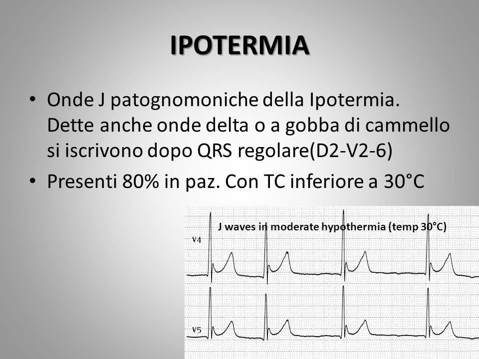 IPOTERMIA Onde J patognomoniche della Ipotermia. Dette anche onde delta o a gobba di cammello si iscrivono dopo QRS regolare(D2-V2-6)