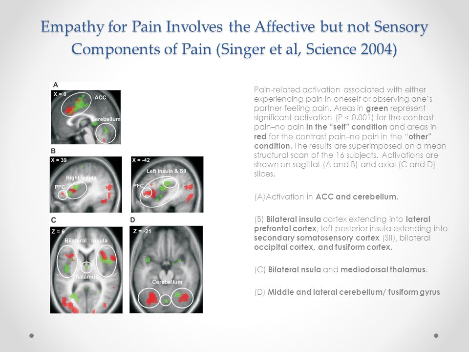 Empathy for Pain Involves the Affective but not Sensory Components of Pain (Singer et al, Science 2004)
