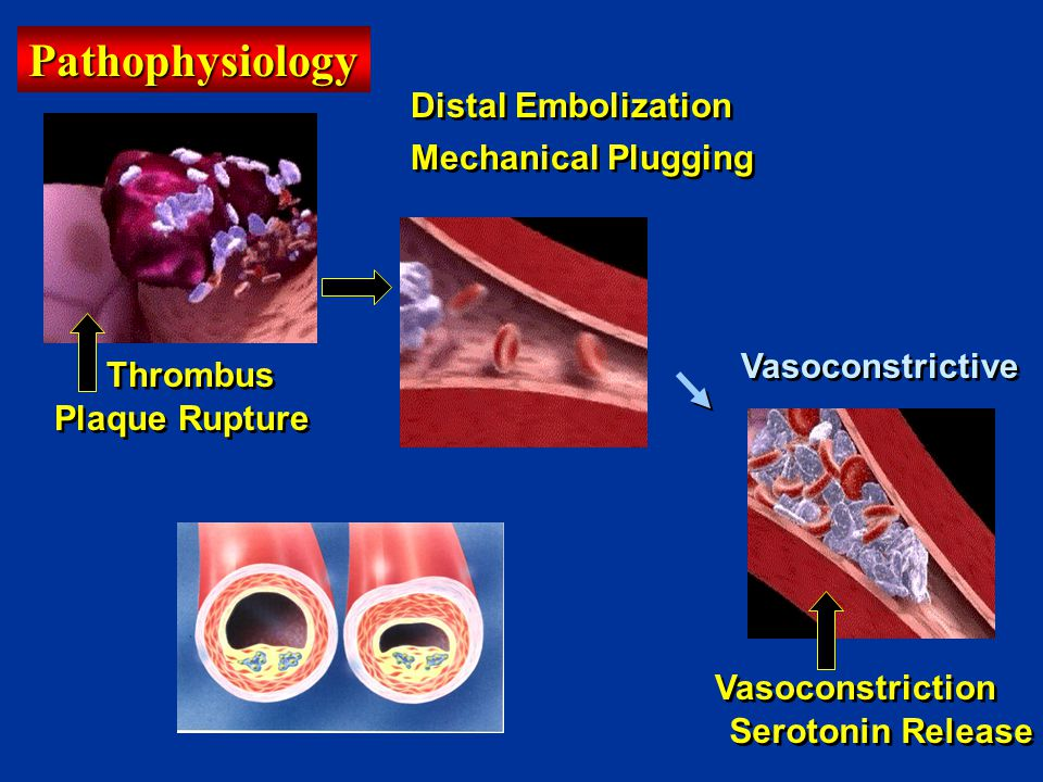 Pathophysiology Distal Embolization Mechanical Plugging