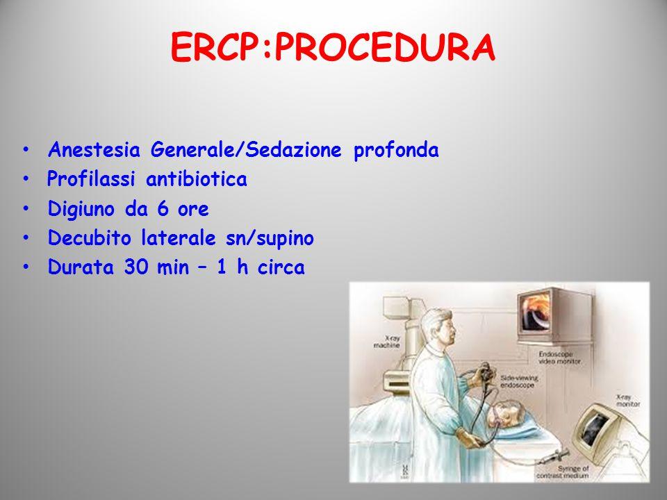 ERCP:PROCEDURA Anestesia Generale/Sedazione profonda
