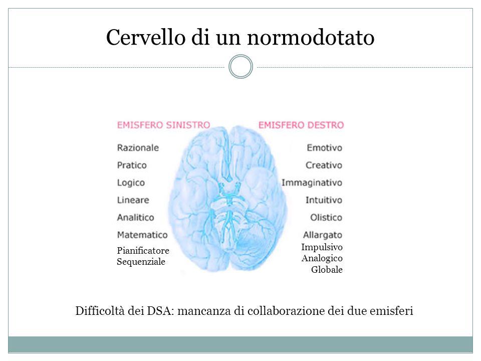Cervello di un normodotato