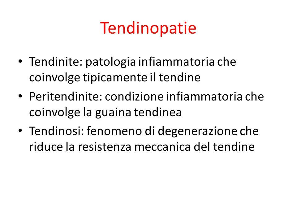 Tendinopatie Tendinite: patologia infiammatoria che coinvolge tipicamente il tendine.