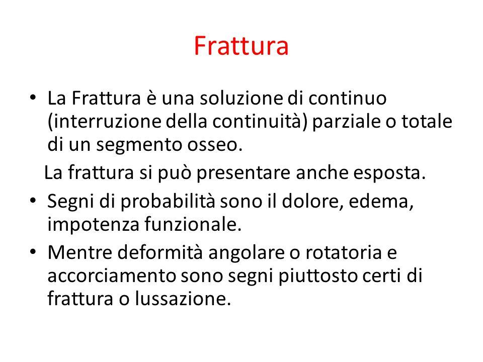 Frattura La Frattura è una soluzione di continuo (interruzione della continuità) parziale o totale di un segmento osseo.