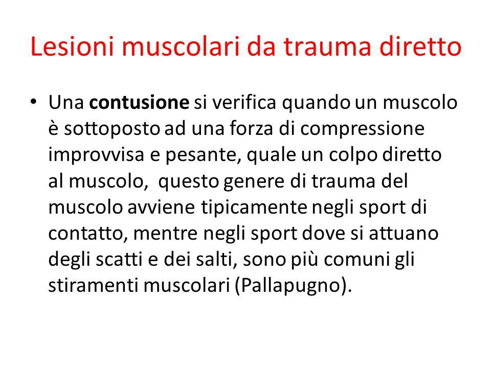 Lesioni muscolari da trauma diretto