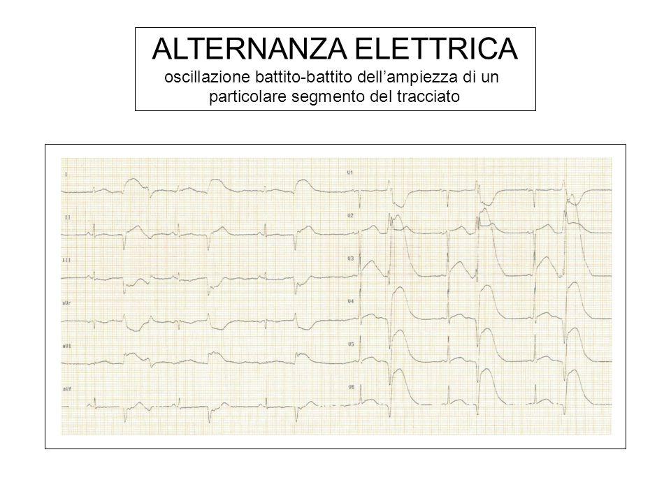 ALTERNANZA ELETTRICA oscillazione battito-battito dell'ampiezza di un
