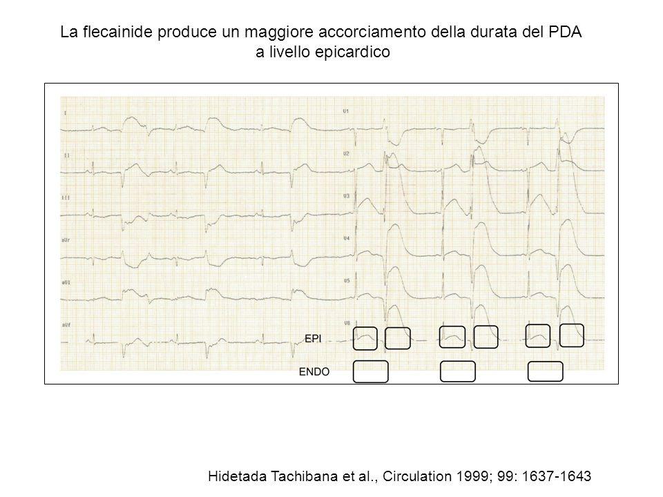 La flecainide produce un maggiore accorciamento della durata del PDA