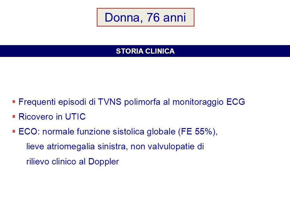 Donna, 76 anni Frequenti episodi di TVNS polimorfa al monitoraggio ECG