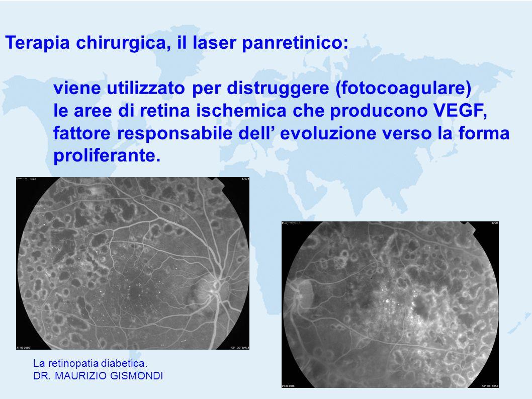 Terapia chirurgica, il laser panretinico: