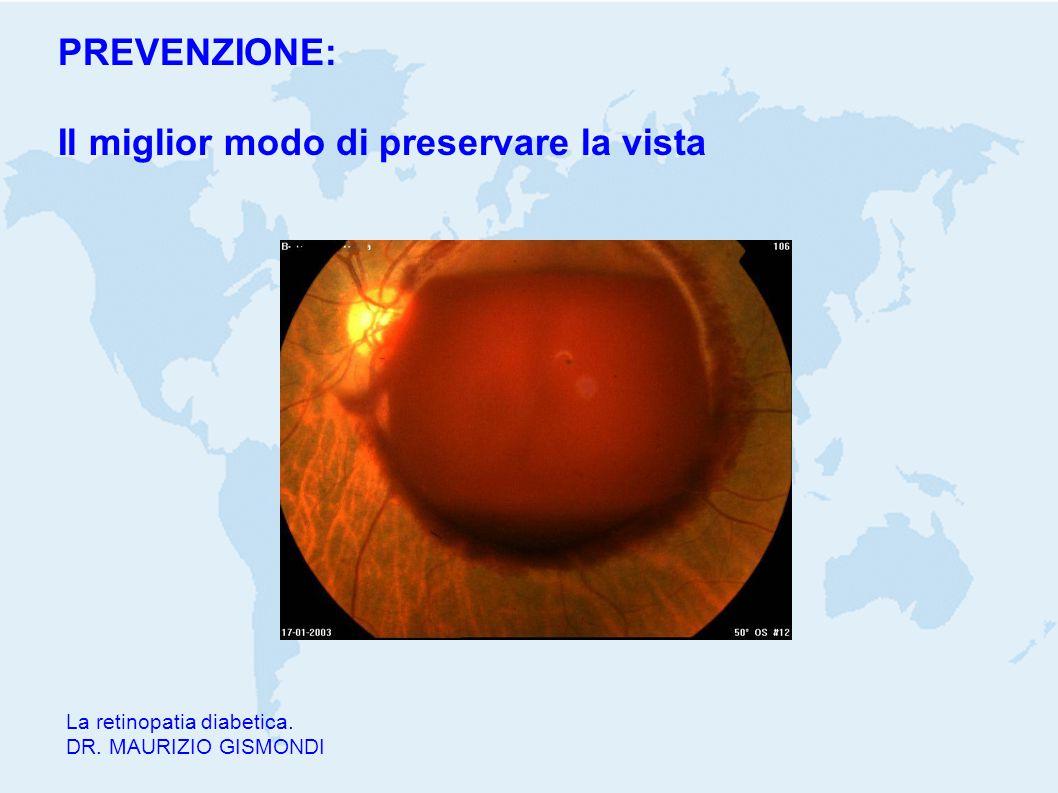 Il miglior modo di preservare la vista