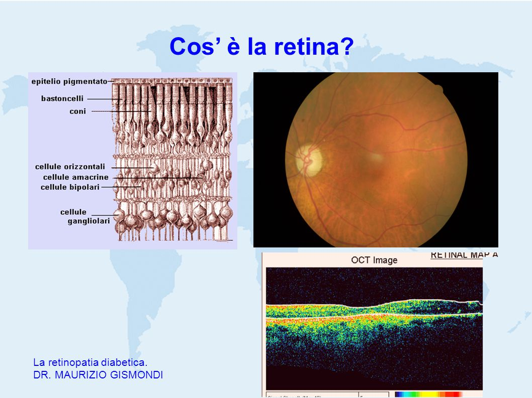 Cos' è la retina La retinopatia diabetica. DR. MAURIZIO GISMONDI