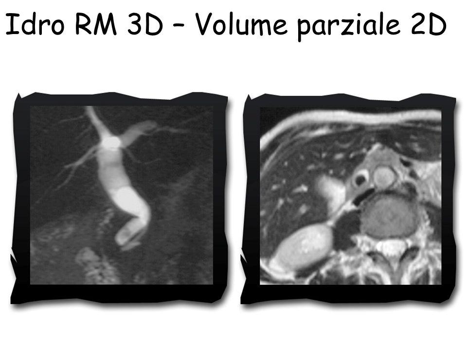 Idro RM 3D – Volume parziale 2D