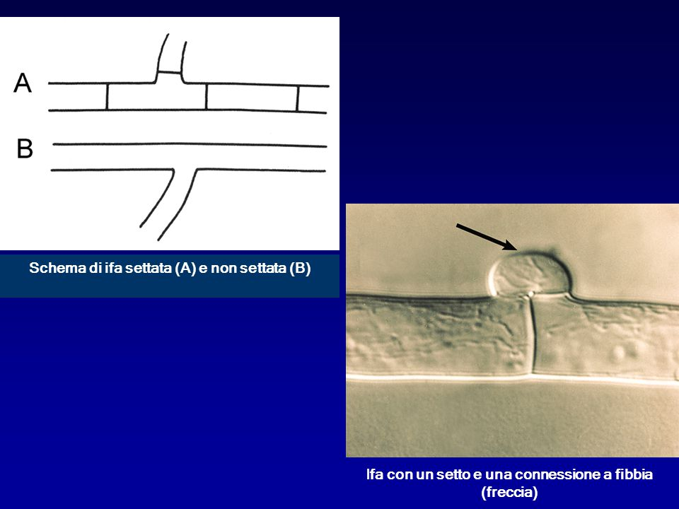 Schema di ifa settata (A) e non settata (B)