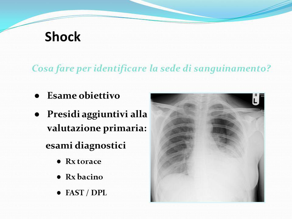 Shock Cosa fare per identificare la sede di sanguinamento