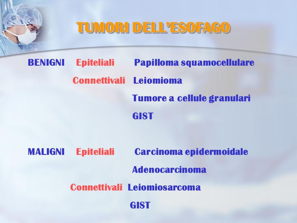 TUMORI DELL'ESOFAGO BENIGNI Epiteliali Papilloma squamocellulare