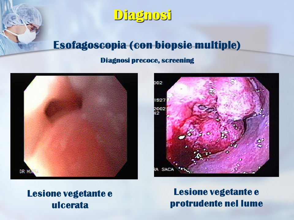 Diagnosi Esofagoscopia (con biopsie multiple)