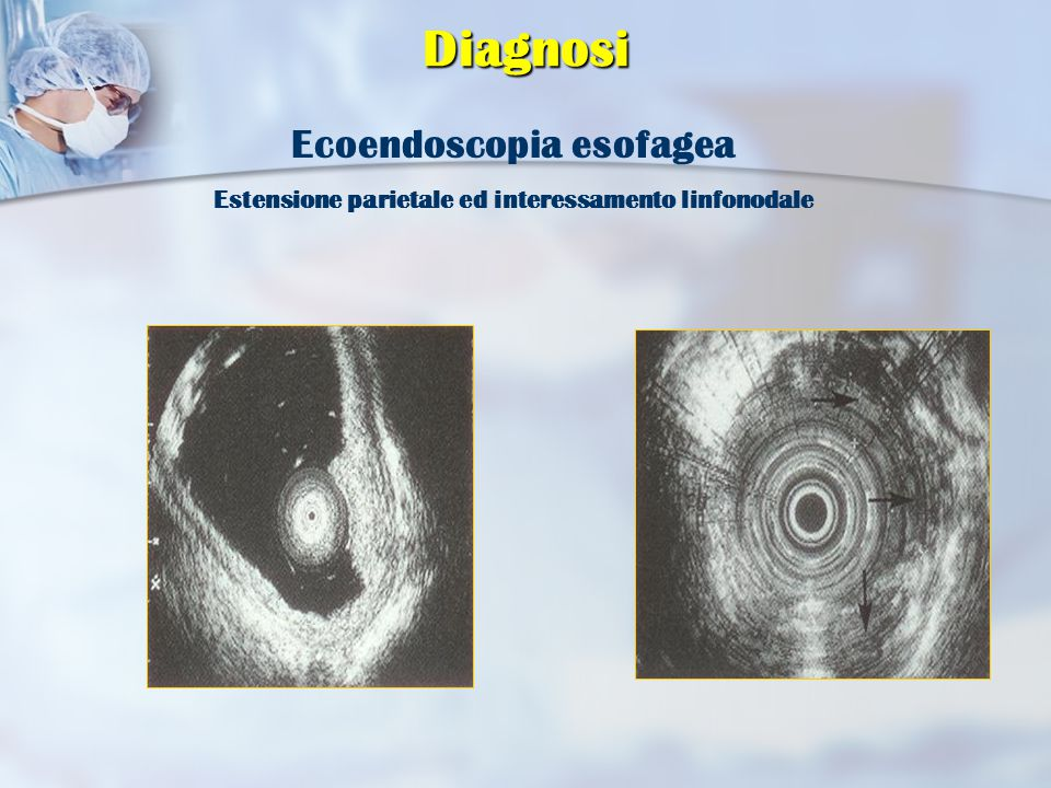 Diagnosi Ecoendoscopia esofagea