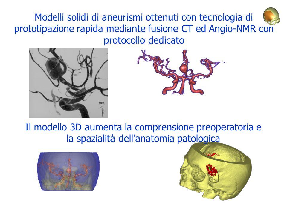 Modelli solidi di aneurismi ottenuti con tecnologia di prototipazione rapida mediante fusione CT ed Angio-NMR con protocollo dedicato