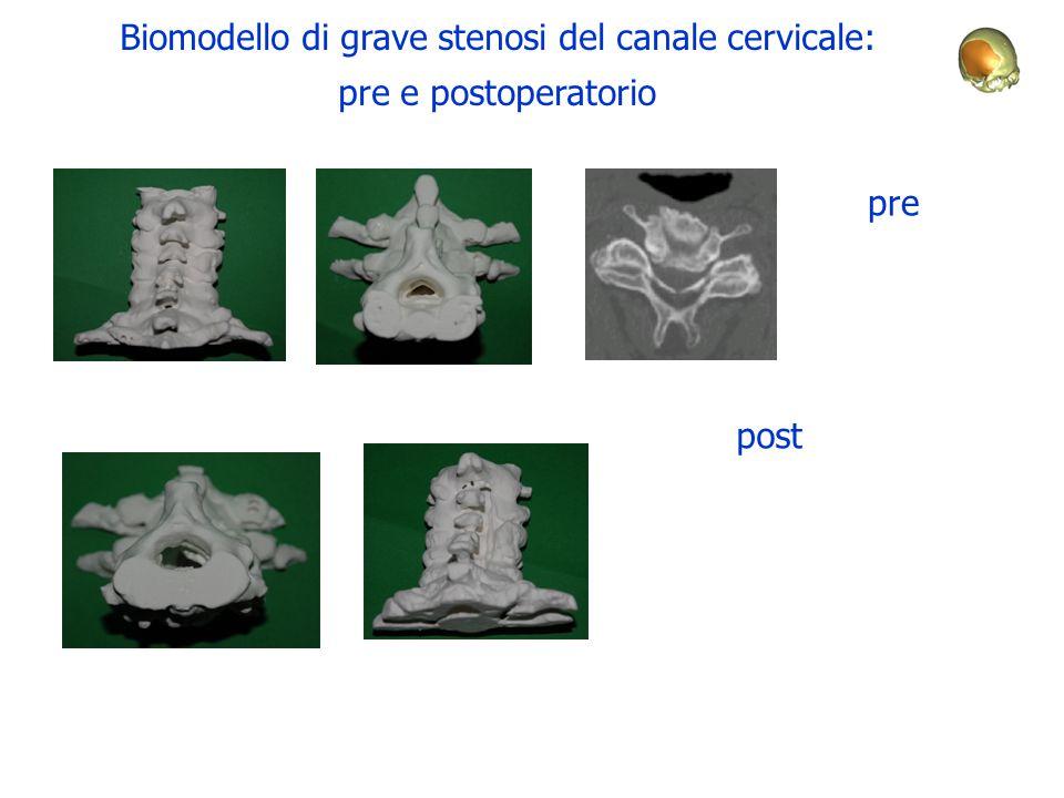 Biomodello di grave stenosi del canale cervicale: