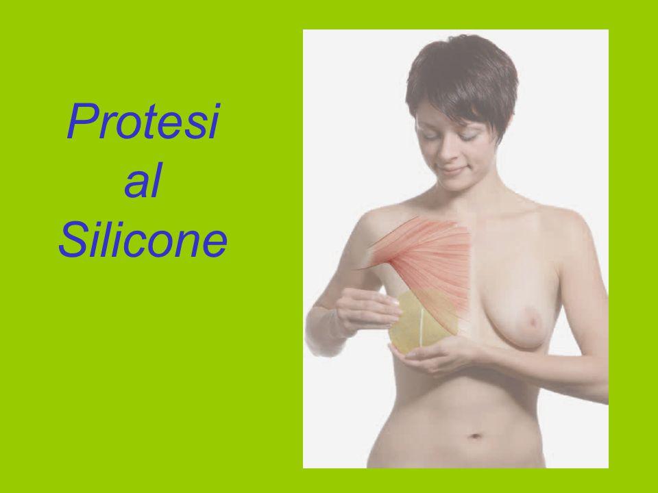 Protesi al Silicone