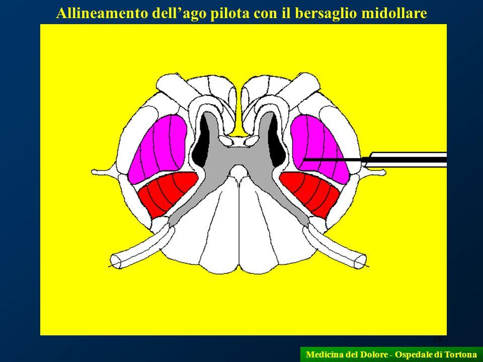 Allineamento dell'ago pilota con il bersaglio midollare