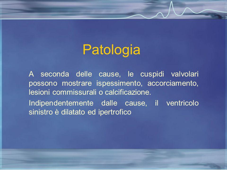 Patologia A seconda delle cause, le cuspidi valvolari possono mostrare ispessimento, accorciamento, lesioni commissurali o calcificazione.