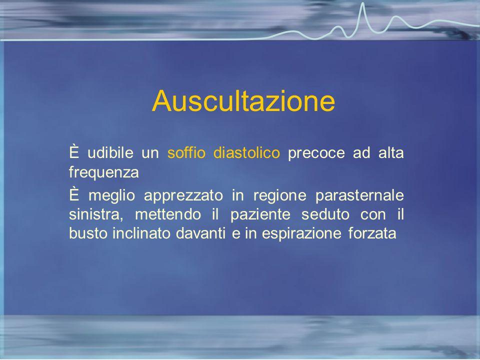 Auscultazione È udibile un soffio diastolico precoce ad alta frequenza