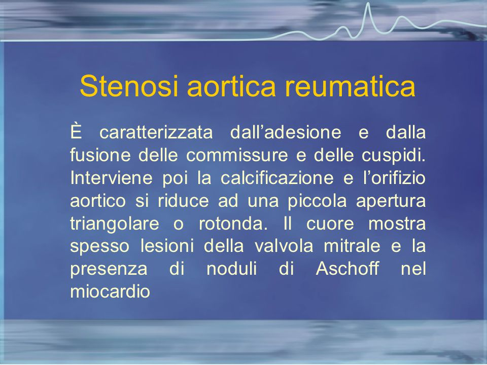 Stenosi aortica reumatica