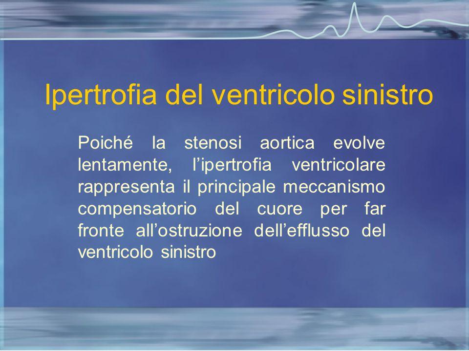 Ipertrofia del ventricolo sinistro
