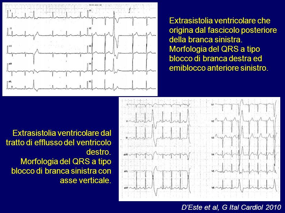 Extrasistolia ventricolare che origina dal fascicolo posteriore della branca sinistra.