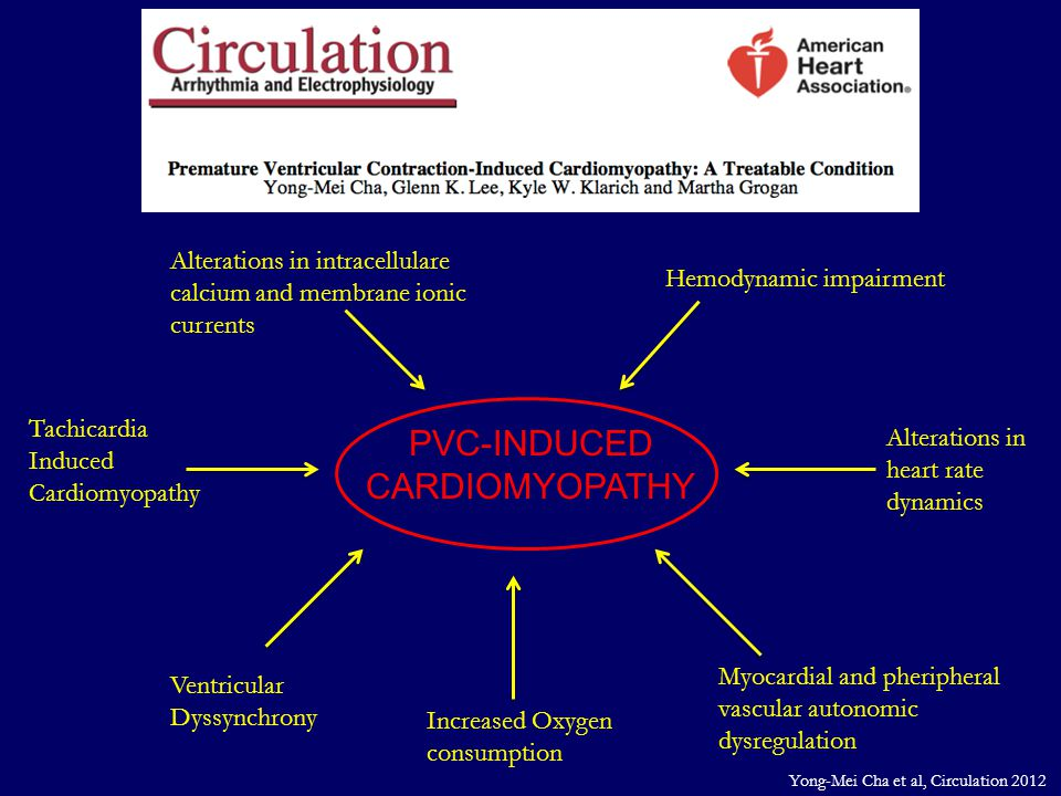 PVC-INDUCED CARDIOMYOPATHY