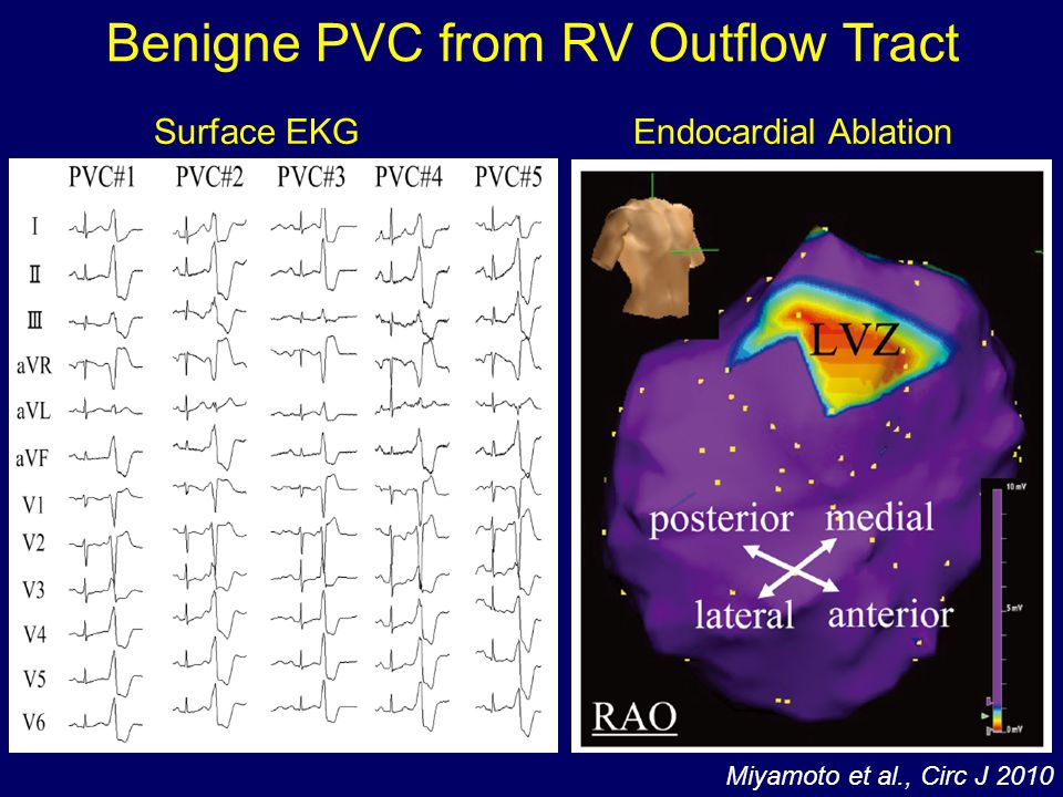 Benigne PVC from RV Outflow Tract