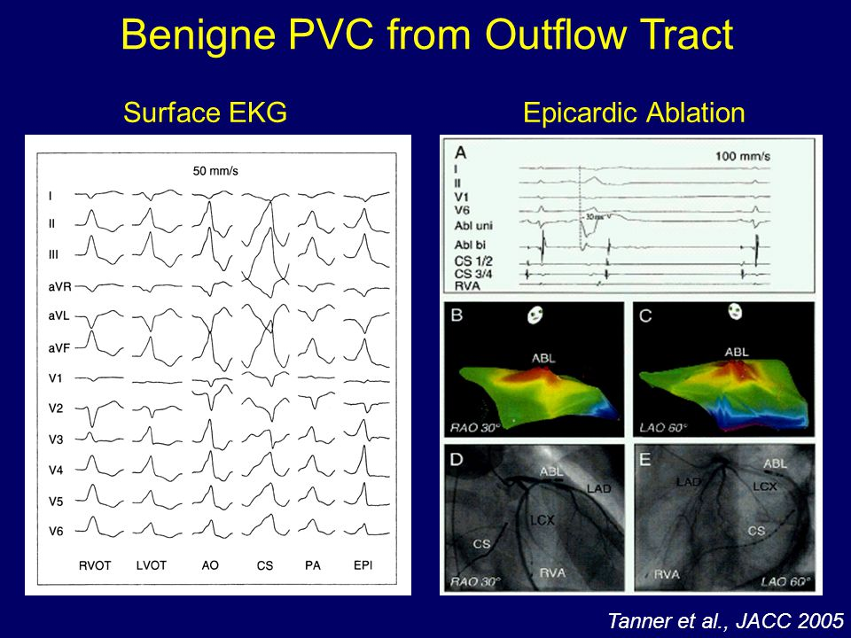 Benigne PVC from Outflow Tract