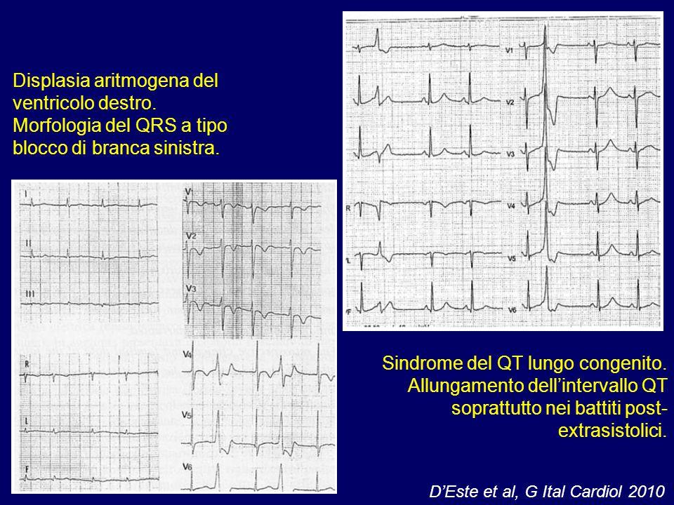 Displasia aritmogena del ventricolo destro.