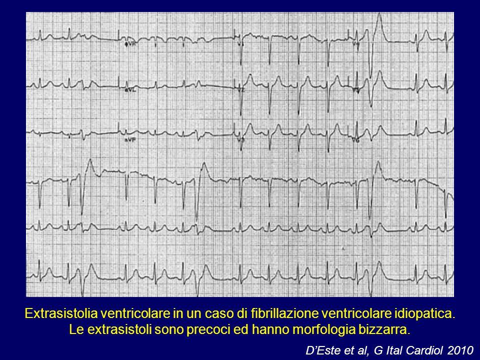 Extrasistolia ventricolare in un caso di fibrillazione ventricolare idiopatica. Le extrasistoli sono precoci ed hanno morfologia bizzarra.