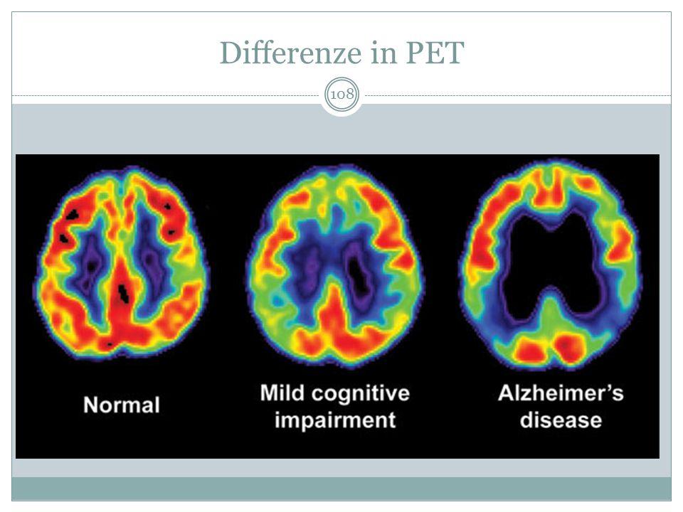 Invecchiamento fisiologico Demenza tipo Alzhiemer