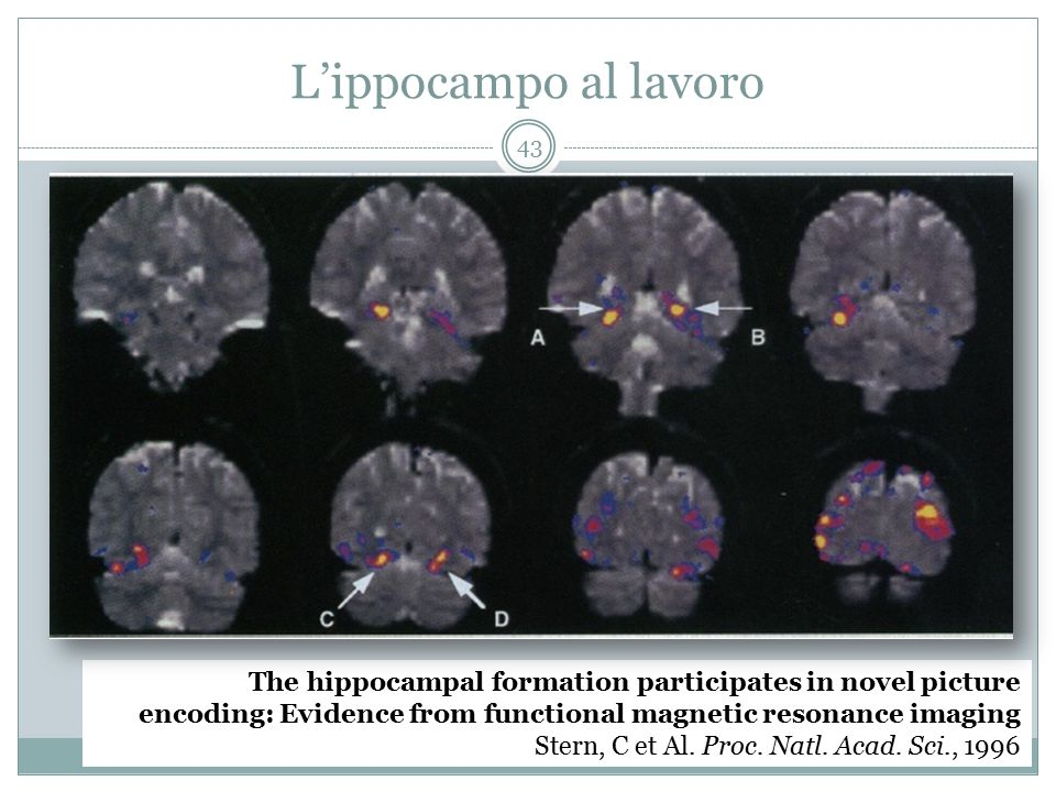 L'ippocampo al lavoro The hippocampal formation participates in novel picture. encoding: Evidence from functional magnetic resonance imaging.