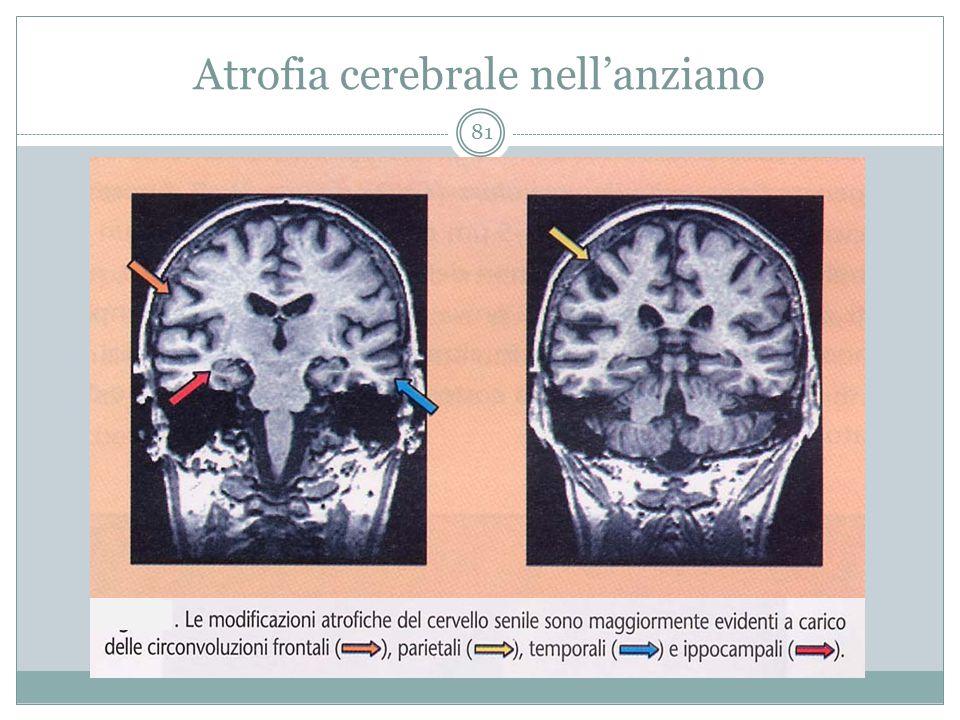 Atrofia cerebrale nell'anziano