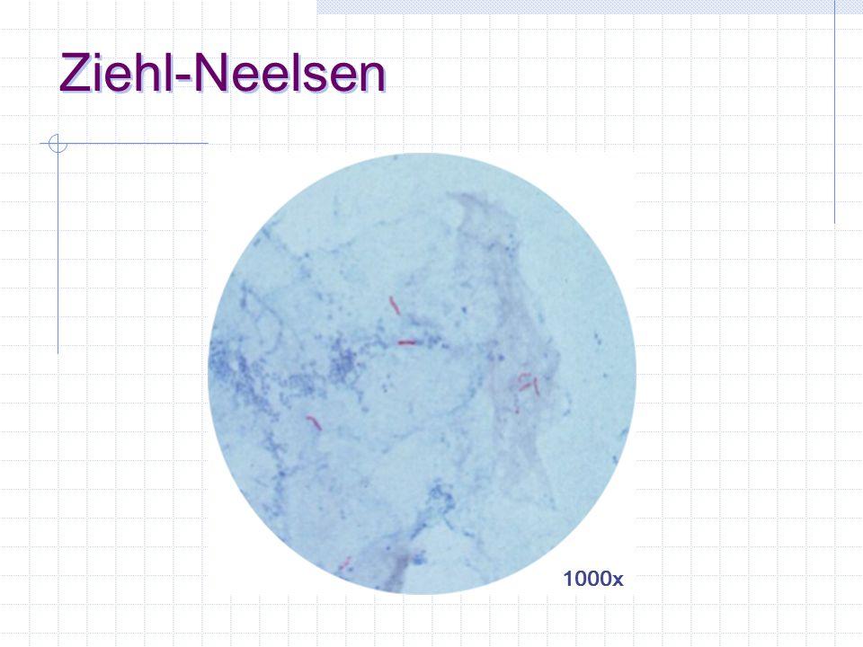 Ziehl-Neelsen 1000x