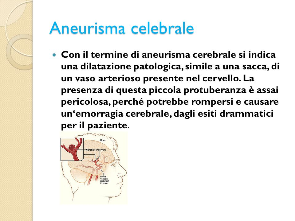 Aneurisma celebrale