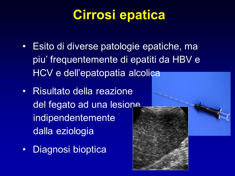 Cirrosi epatica Esito di diverse patologie epatiche, ma piu' frequentemente di epatiti da HBV e HCV e dell'epatopatia alcolica.