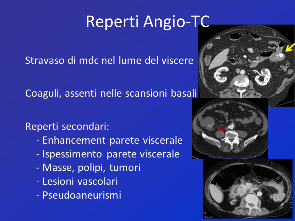 Reperti Angio-TC