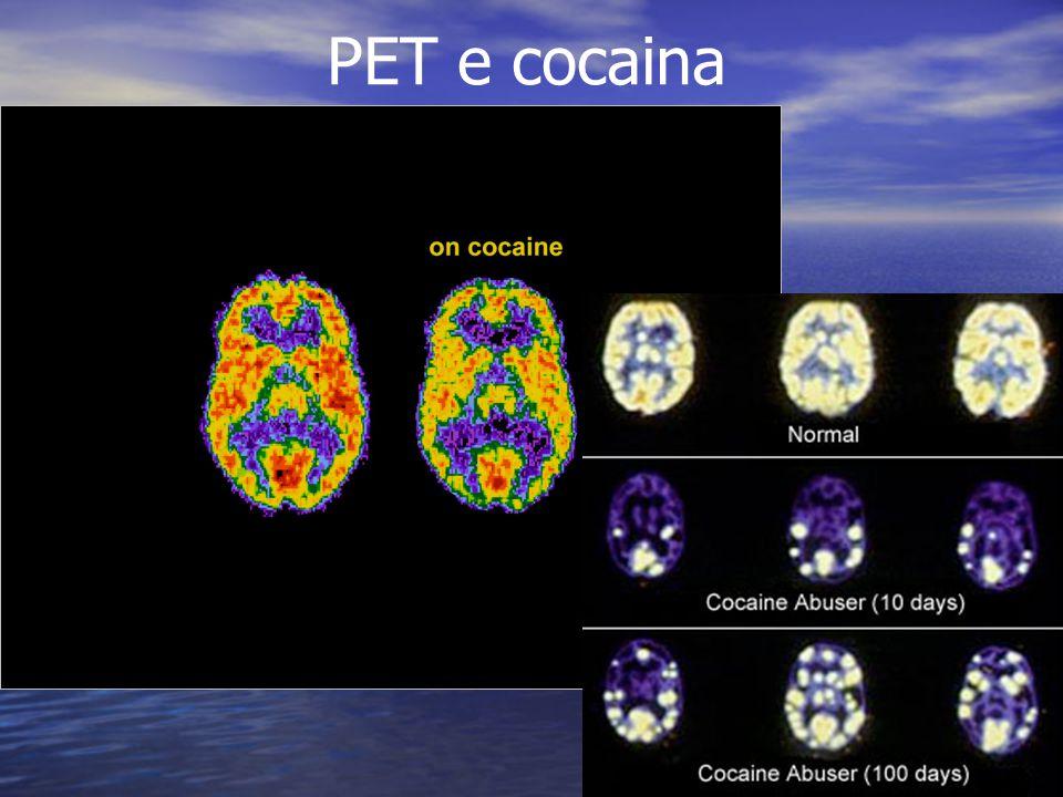 PET e cocaina