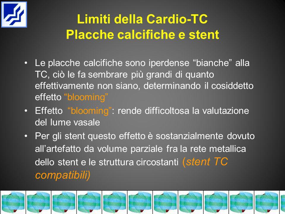 Limiti della Cardio-TC Placche calcifiche e stent