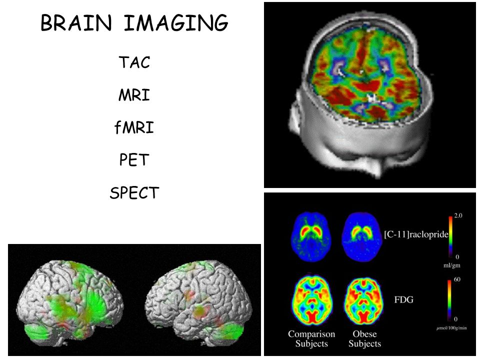 BRAIN IMAGING TAC MRI fMRI PET SPECT