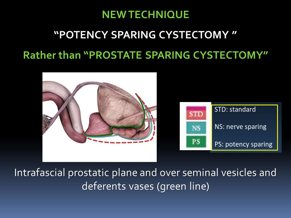 POTENCY SPARING CYSTECTOMY