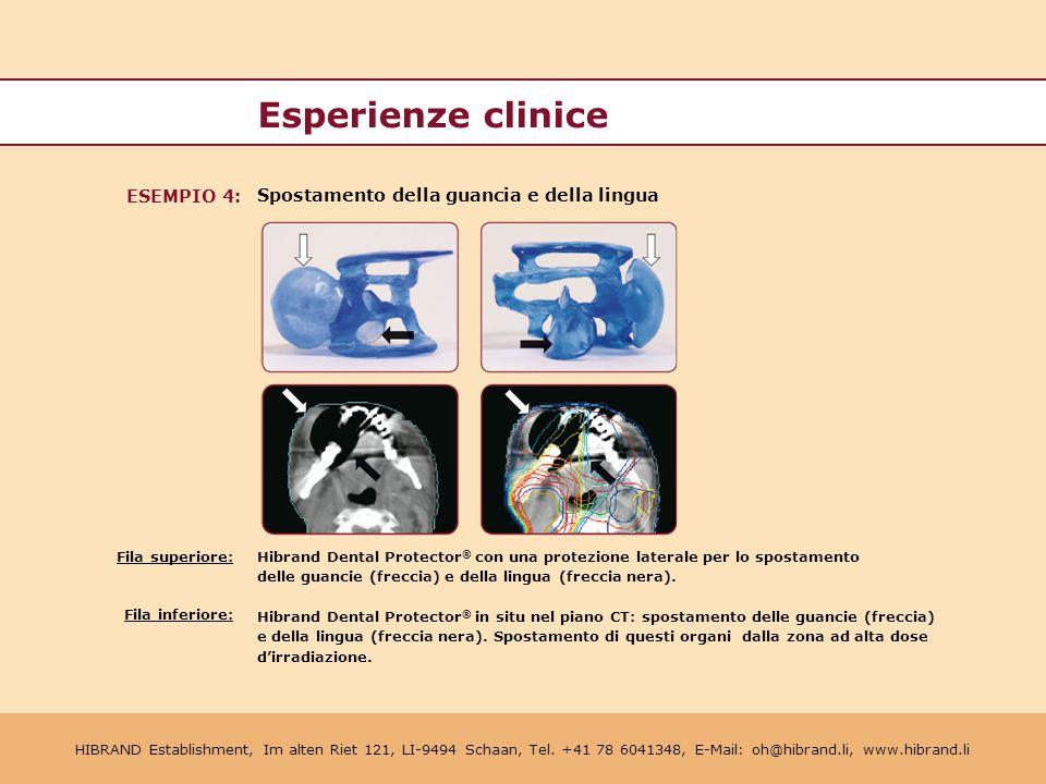 Esperienze clinice ESEMPIO 4: Spostamento della guancia e della lingua