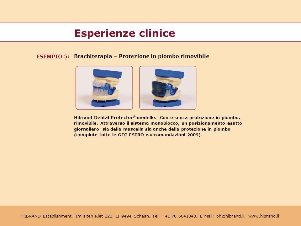 Esperienze clinice ESEMPIO 5: