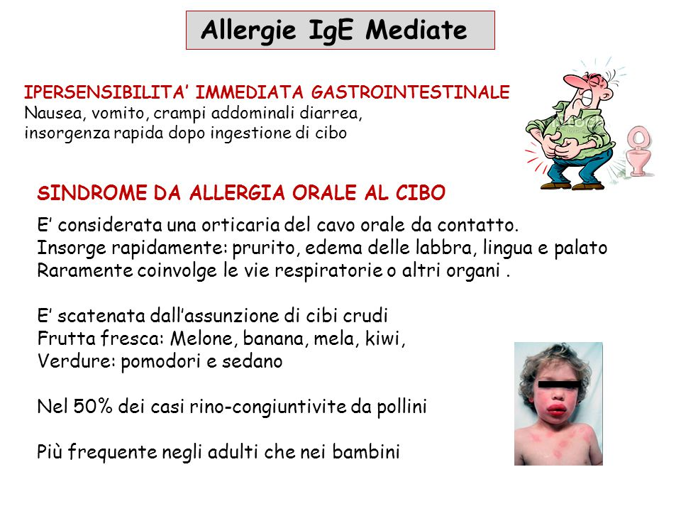Allergie IgE Mediate Sindrome da allergia orale al cibo